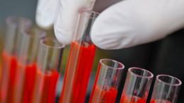 Biotechkonzern kauft Krebsspezialisten für 9 Milliarden Dollar