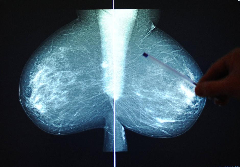 Auch bei Brustkrebs sind Biomarker-geleitete Therapien angesagt.