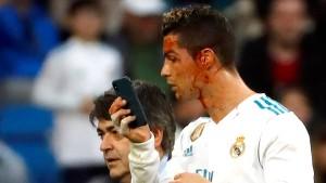 Blutiges Ende für Ronaldo bei Reals Torfestival