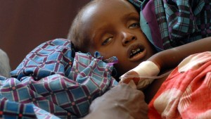 Unicef warnt vor Kinder-Massensterben in Ostafrika